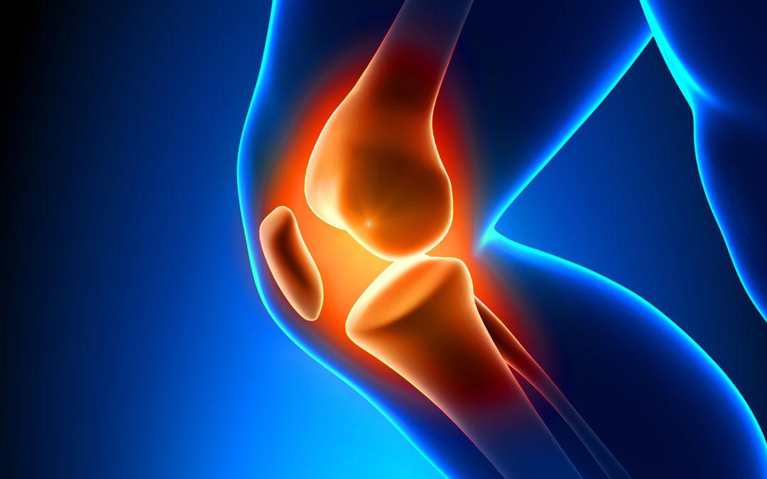 L'arthrose : comment freiner l'usure des cartilages?